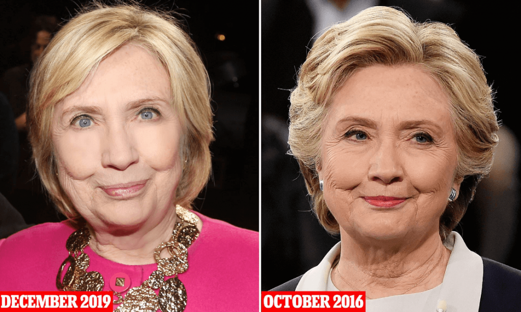 Hillary Clinton Before and After Procedur Speculatiob