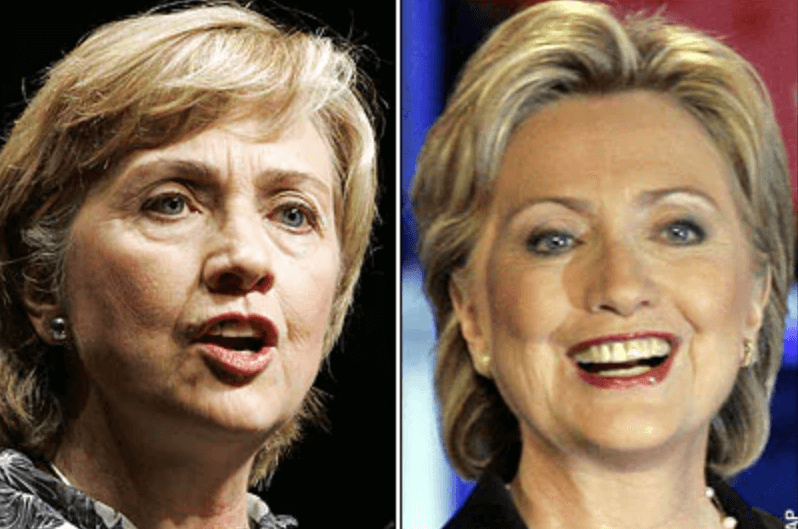 Hillary Clinton Before and After Procedur Speculation