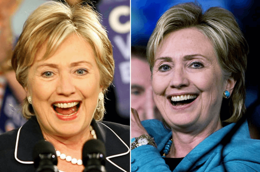 Hillary Clinton Botox and Fillers Rumor