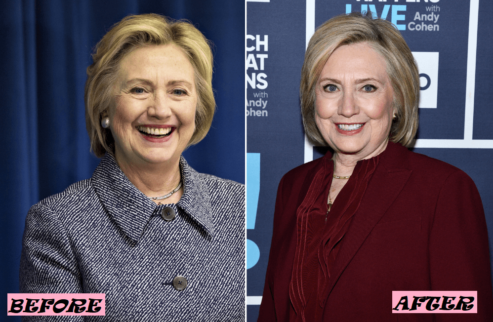 Hillary Clinton Plastic Surgery Rumor: Before After Photo
