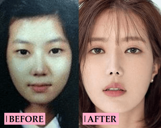 Im Soo Hyang Plastic Surgery Rumor: Before and After