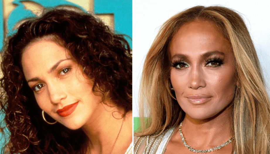Jennifer Lopez Facelift and Botox Speculations