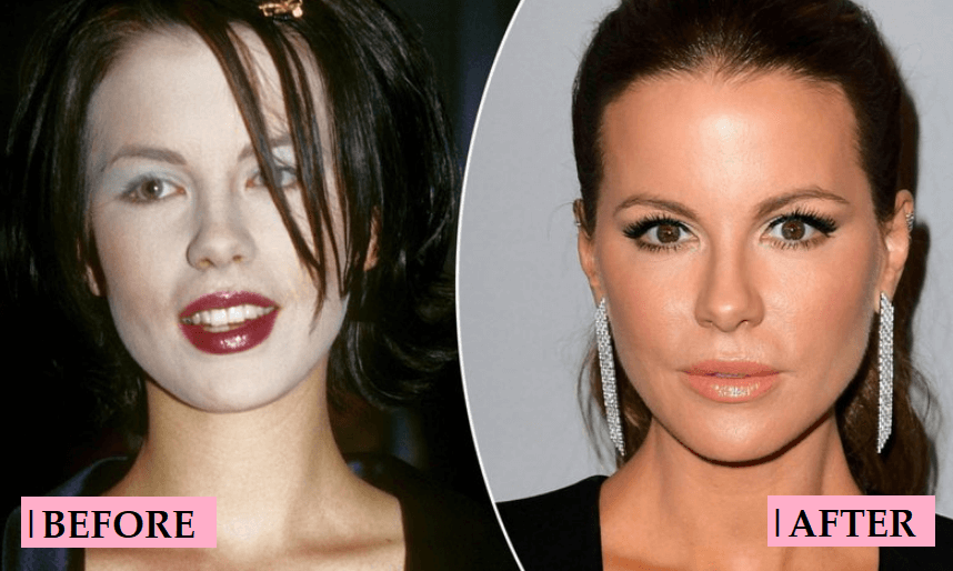Kate Beckinsale Plastic Surgery Rumor: Before After Transformations
