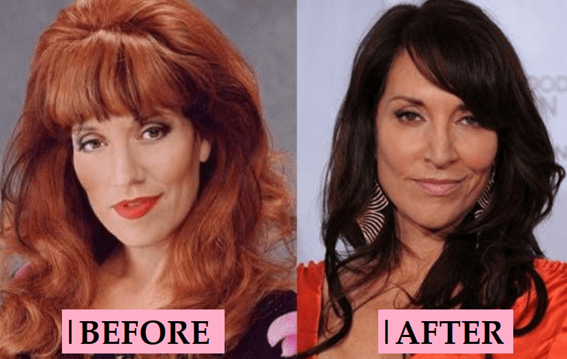 Katey Sagal Plastic Surgery Rumor: Before and After Photo