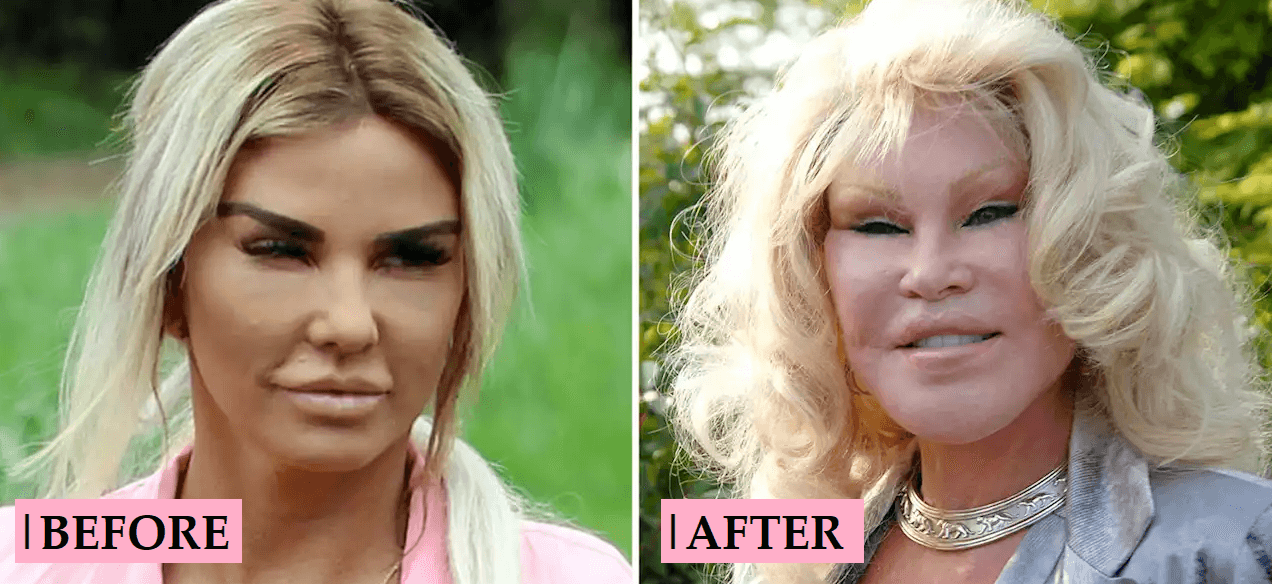 Katie Price Plastic Surgery Transformation Before After