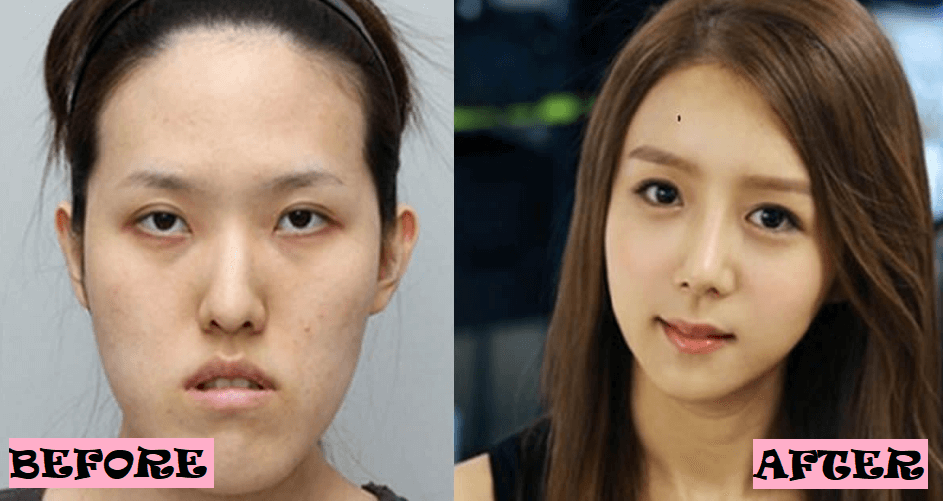 Korean Before and After Face Surgery