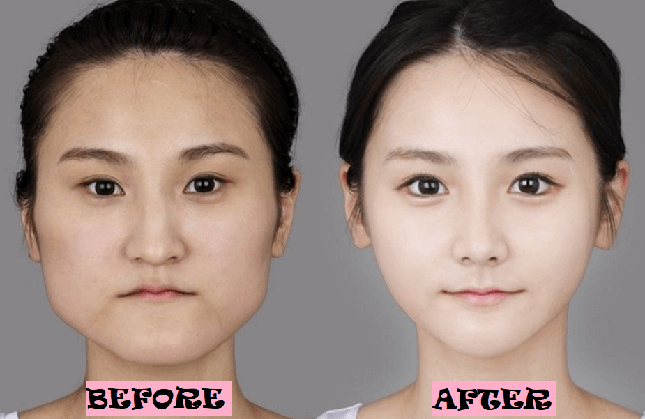 Korean Plastic Surgery Before and After Photo