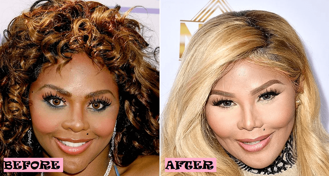 Lil Kim Plastic Surgery Rumor: Before and After Photo