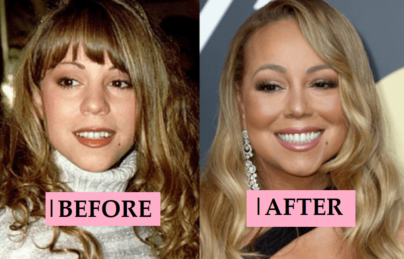 Mariah Carey Plastic Surgery: Before After Transformations