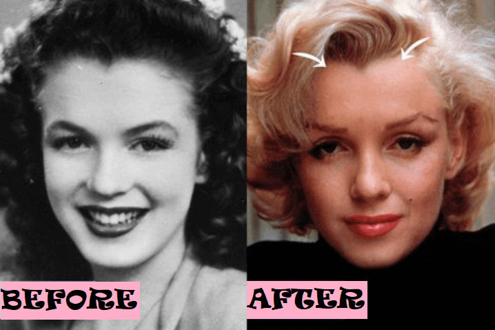 Marilyn Monroe Surgery After