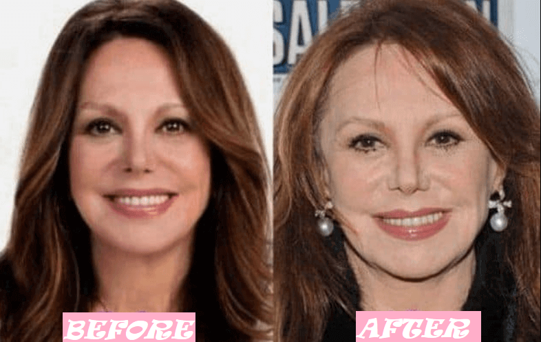 Marlo Thomas Plastic Surgery: Transformation Before and After
