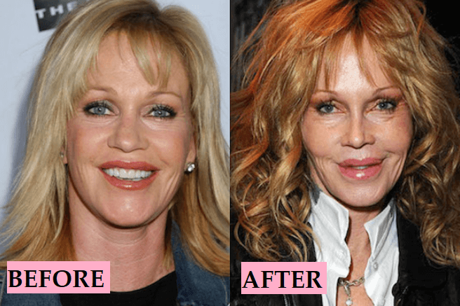 Melanie Griffith Plastic Surgery: Before After Transformations