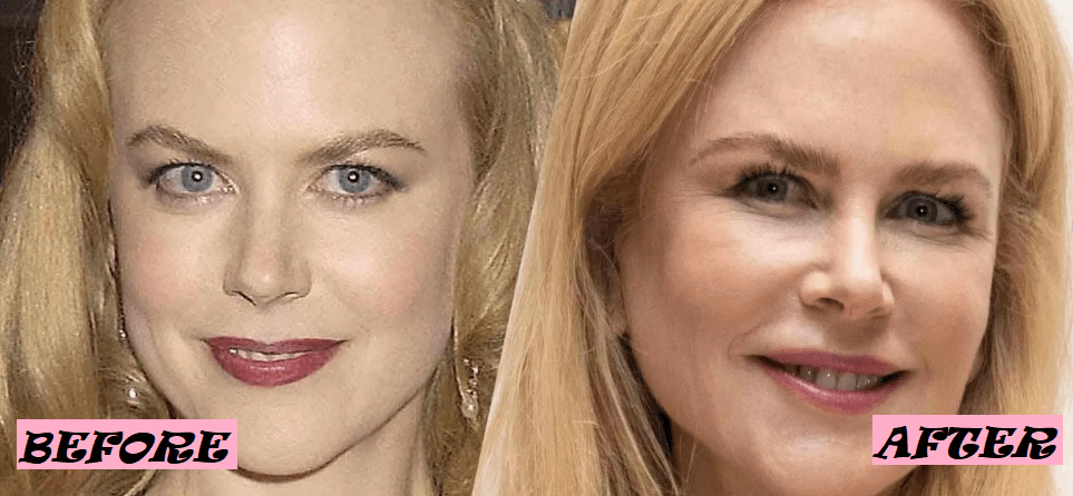 Nicole Kidman Surgery Before and After Photo
