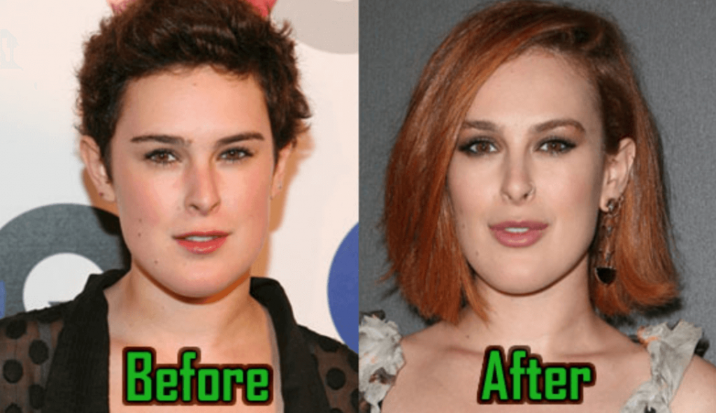 Rumer Willis Before After Photos
