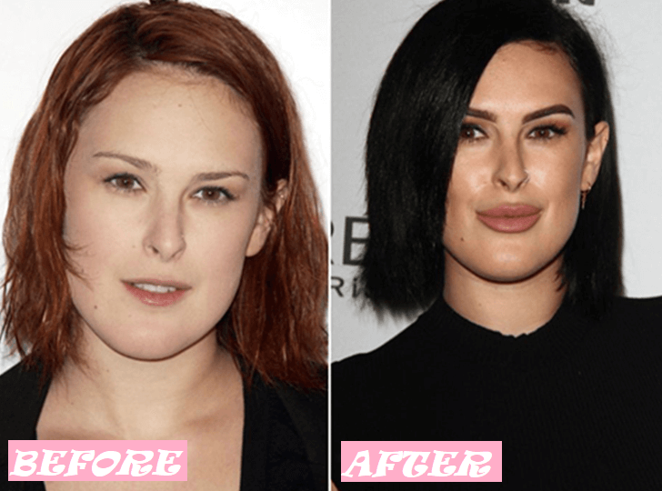 Rumer Willis Plastic Surgery: Before and After Photo Transformation