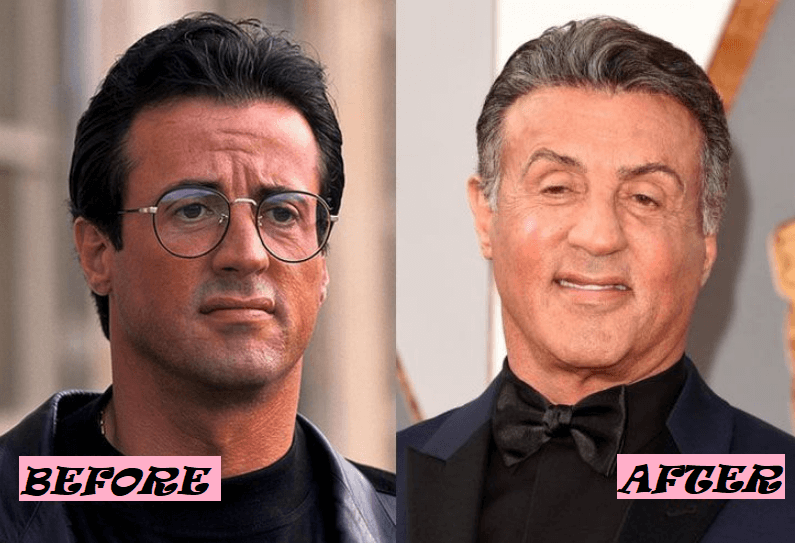 Sylvester Stallone Before and After Transformation