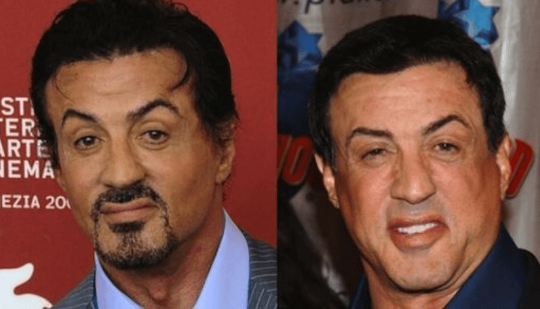 Sylvester Stallone Plastic Surgery Speculation