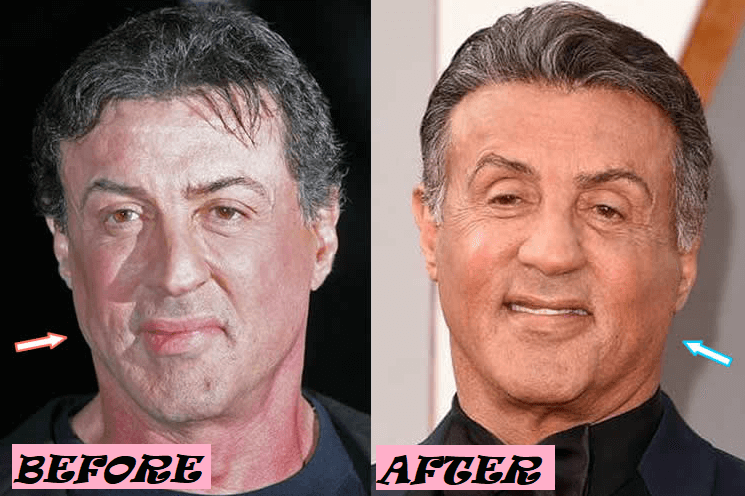 Sylvester Stallone Plastic Surgery: Before and After Photo